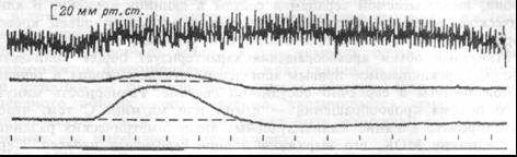 Рис.7.3 Сверху вниз: аортальное давление, перфузионное давление в плече-головной артерии, лерфузионное давление в грудной аорте, отметка времени (20 с), отметка стимуляции.