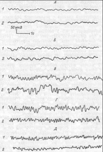 Возрастная динамика  электроэнцефалограммы.