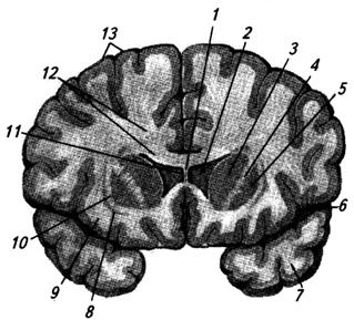 Фронтальный срез через большие полушария мозга