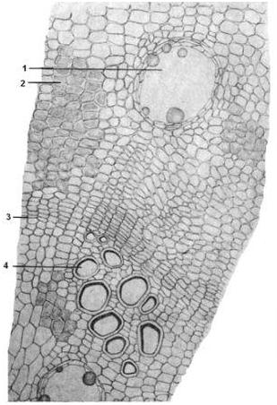 Микроскопия корня девясила