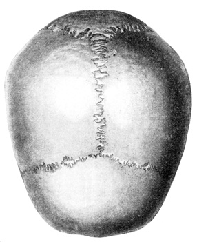 Крыша черепа